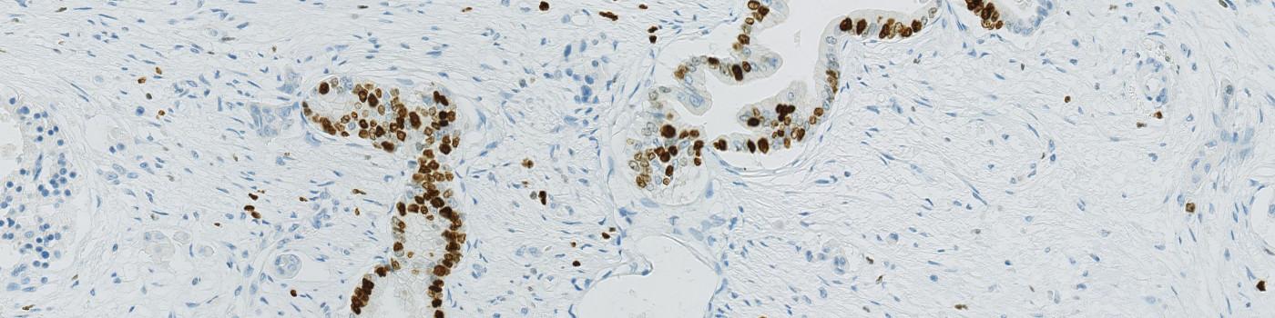Ki-67, Pancreatic Cancer