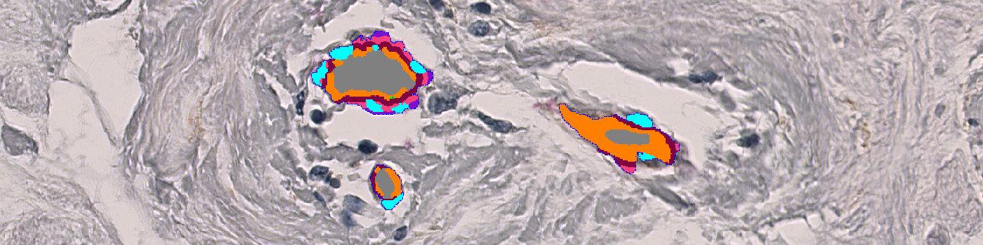 aSMA+Col IV, Breast Cancer