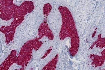 Invasive Tumor Detection (PDS)