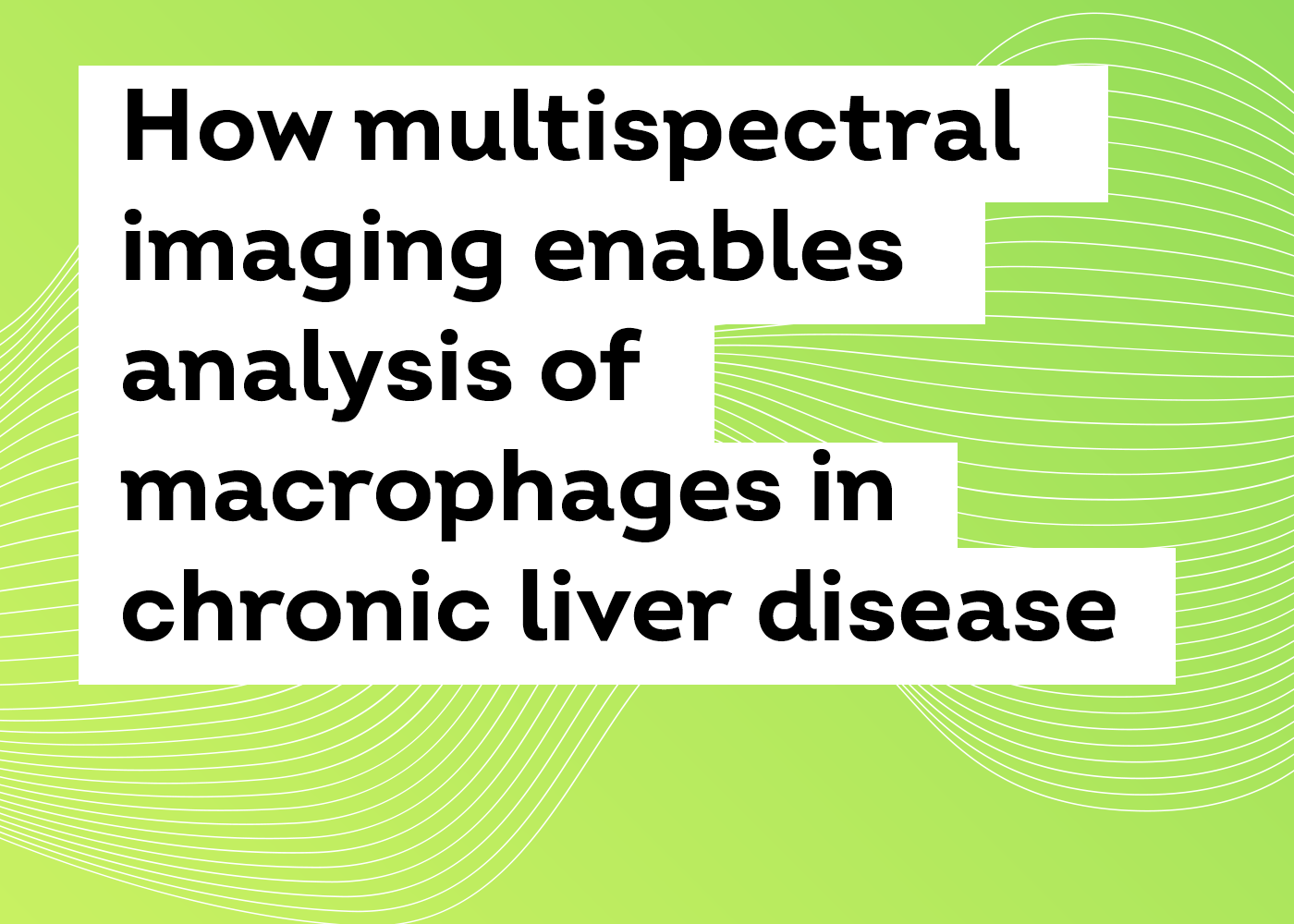 How multispectral imaging enables analysis of macrophages in chronic liver disease